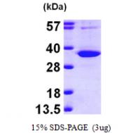 AR09645PU-L - Uridine phosphorylase 1 (UPP1)