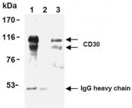 AM20190AF-N - CD30
