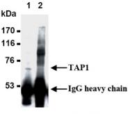 AM20194AF-N - ABCB2 / APT1 / TAP1