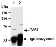 AM20195AF-N - ABCB3 / APT2 / TAP2