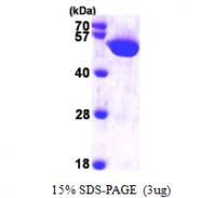 AR09664PU-L - Histidyl-tRNA synthetase / HARS