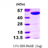 AR09670PU-L - Thymidine phosphorylase (TYMP)