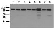 AM20218PU-N - HGF receptor