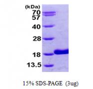 AR09681PU-L - Retinol-binding protein 5 / RBP5