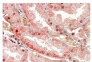 AP20161PU-N - Polycystin-1 / PKD1