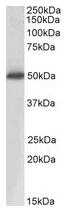 AP20162PU-N - ACPP /  Prostatic acid phosphatase