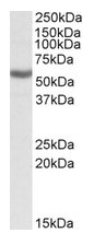 AP20185PU-N - ALDH3B1 / ALDH7
