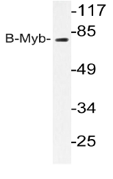 AP20207PU-N - MYBL2