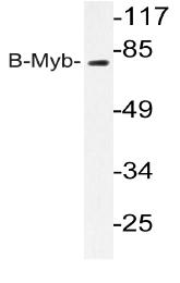 AP20206PU-N - Aurora kinase A