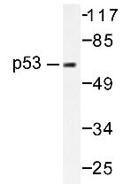 AP20198PU-N - TP53 / p53
