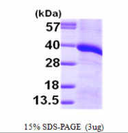 AR09706PU-L - Monoglyceride lipase