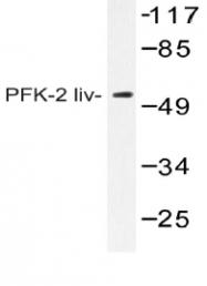 AP20411PU-N - PFKFB1