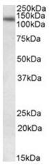 AP26017PU-N - DNA ligase 1