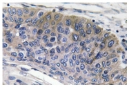 AP20578PU-N - Human IgG1