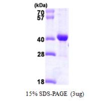 AR09728PU-L - DNAJB2