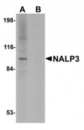 AP30578PU-N - NALP3