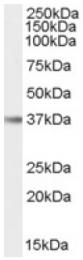AP16570PU-N - Interleukin-12 beta / IL12B