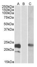 AP21268PU-N - Cystatin 8