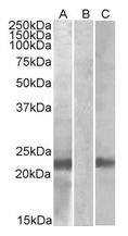 AP21271PU-N - Cystatin 8