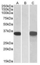 AP21265PU-N - CRISP2