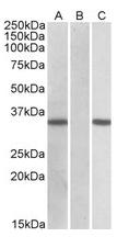 AP21266PU-N - CRISP2