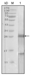 AM20265SU-N - Kallikrein-3 / PSA / KLK3