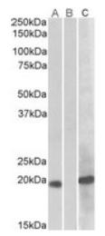AP21275PU-N - HOXA1 / HOX1F