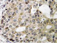 AP21202PU-N - Neurexophilin-1