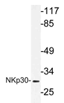 AP21200PU-N - CD337