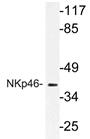 AP21199PU-N - CD335 / NKp46