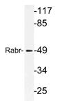 AP21188PU-N - AGFG2 / HRBL