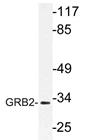 AP21184PU-N - GRB2  / ASH
