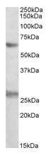 AP21288PU-N - EIF2B4 / EIF2BD