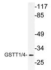 AP21182PU-N - GSTT1