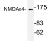 AP21181PU-N - NMDAR2D
