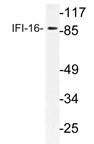 AP21178PU-N - IFI16 / IFNGIP1