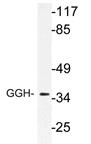 AP21177PU-N - Gamma-glutamyl hydrolase / GGH