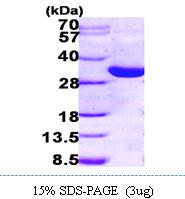 AR09738PU-L - 17-beta HSD14 / HSD17B14