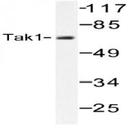 AP21115PU-N - NR2C2