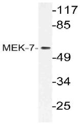 AP21117PU-N - MAP2K7