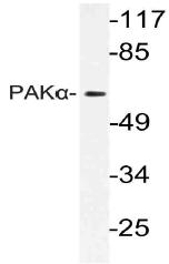 AP21120PU-N - PAK1