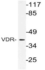 AP21125PU-N - Vitamin D3 receptor / NR1I1