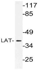AP21126PU-N - LAT