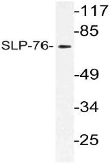 AP21127PU-N - LCP2