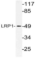 AP21130PU-N - CD91 / LRP1