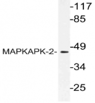 AP21135PU-N - MAPKAP Kinase-2