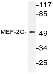 AP21136PU-N - MEF2C