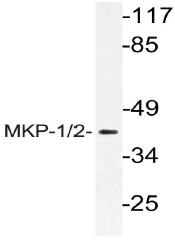 AP21137PU-N - DUSP1 / MKP1