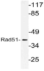 AP21140PU-N - RAD51