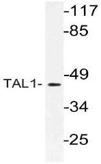 AP21141PU-N - TAL1